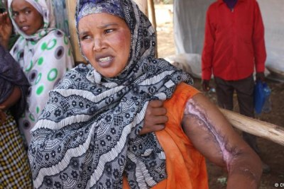An Ethiopian woman shows the injury she suffered.