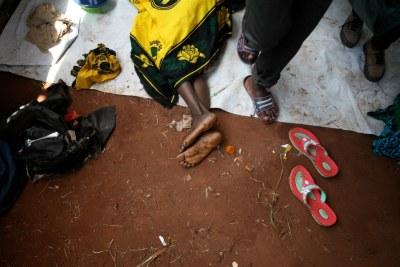 Des femmes souffrant du choléra (archive)