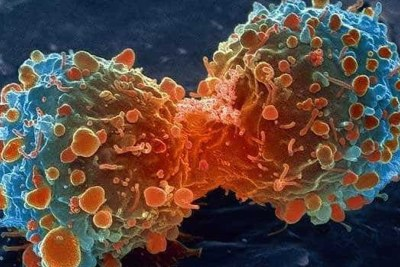 Cancer cells. (file photo).