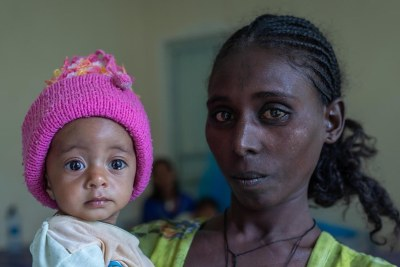 Yeshialem Gebreegziabher, 27, holds her daughter, Kalkidan Yeman, 6 months old, who is suffering from malnutrition at Aby Adi Health center in the Tigray region of northern Ethiopia